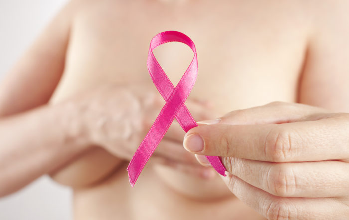 After Cancer, Know your breast reconstruction rights.