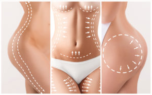 Procedure for liposuction does not erase dimples on skin.