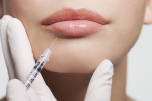 Fillers can shape and Contour your Lips.